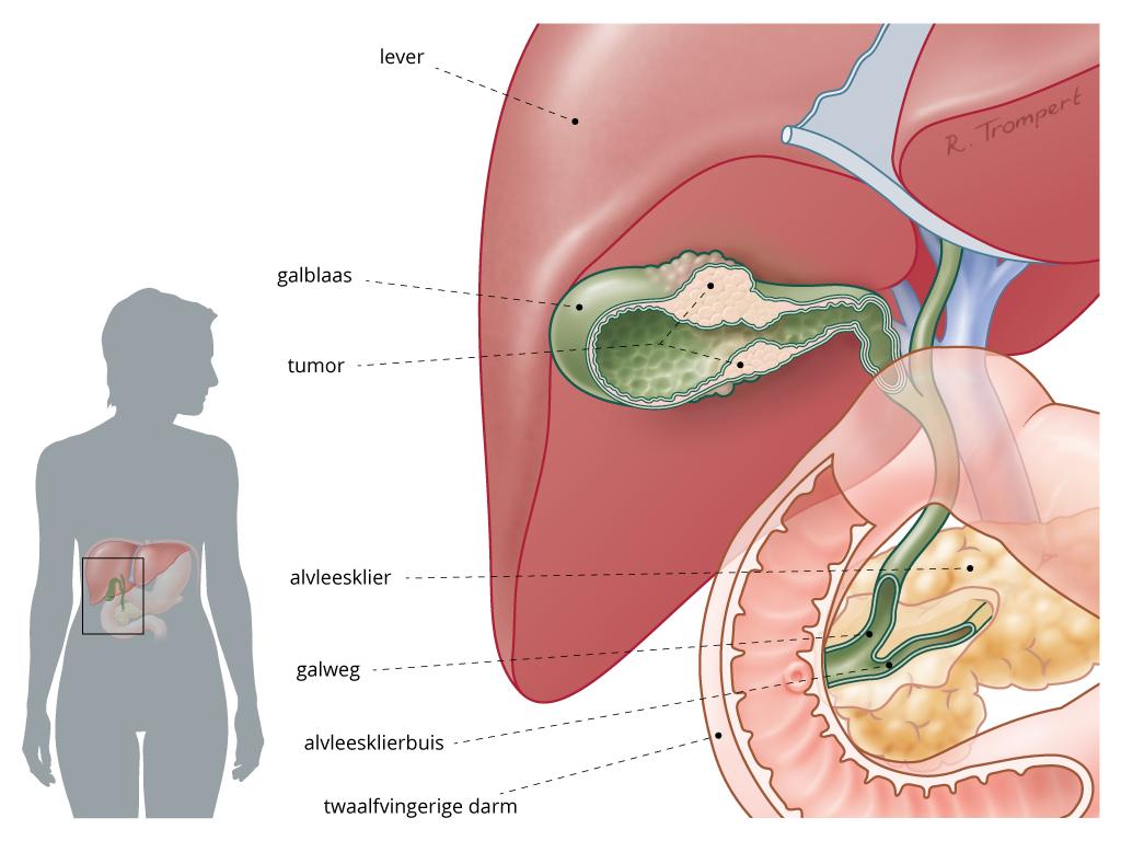 Galblaascarcinoom
