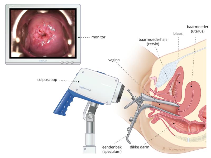 baarmoederhalskanker