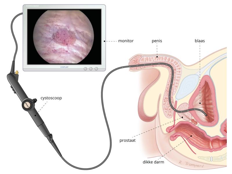onderzoek naar tumoren voor blaaskanker