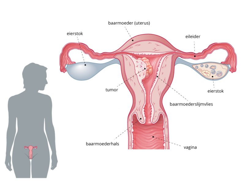 Baarmoederkanker