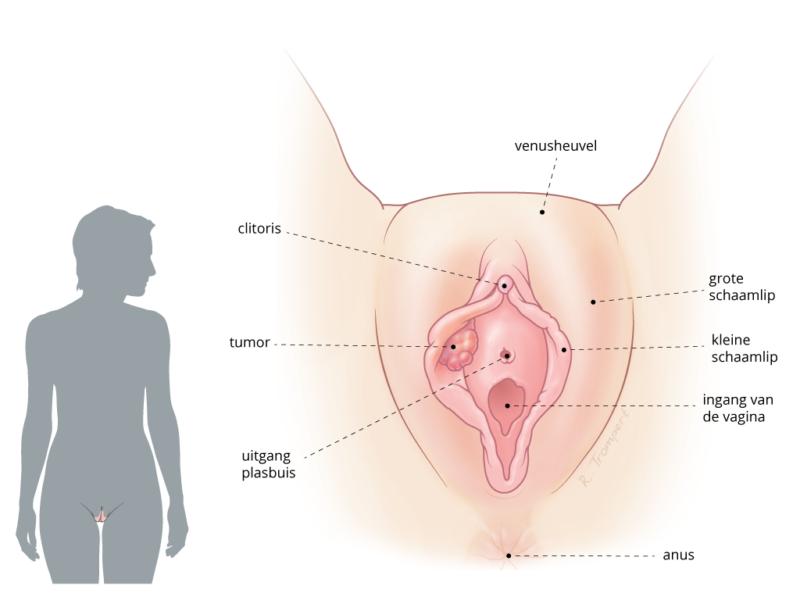vulvakanker