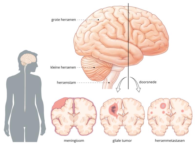 verschillende soorten hersentumoren