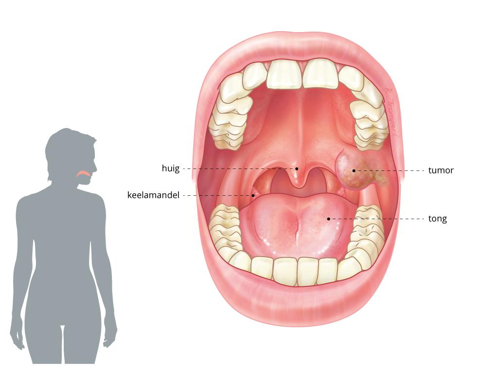 humaan papillomavirus keel