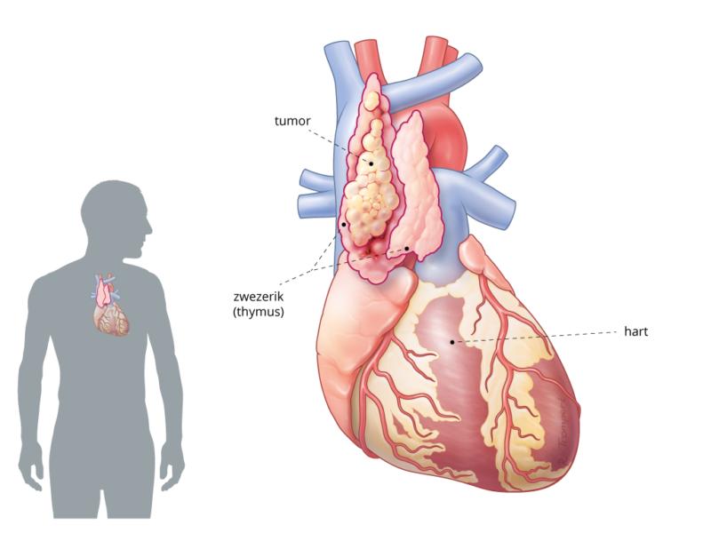 locatie van zwezerik in het lichaam waar tymoom kan groeien