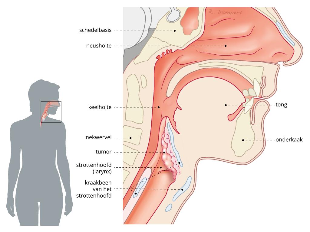 strottenhoofdkanker- keelkanker